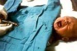 В США собираются ввести обязательное обрезание